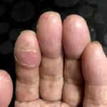 今日の手と足の症状