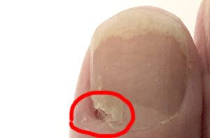 爪に穴があいている